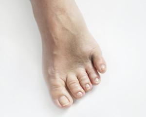 bruised foot