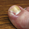ingrown toenail infection