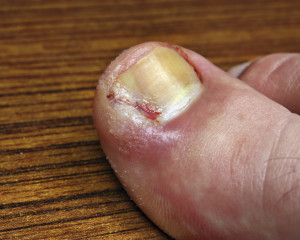 ingrown toenail infection