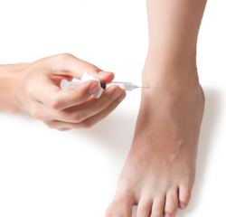 injection therapy in foot