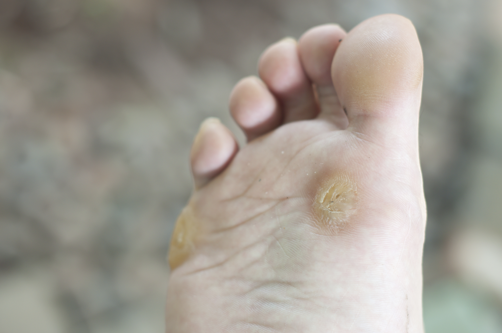 hpv on foot