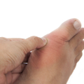 gout attack during the holidays