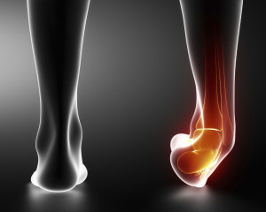 sprained ankle xray