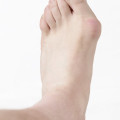 bunion pain for women