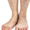 aging and feet