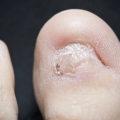 toenail fell off