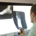 Greensboro foot and ankle surgeon