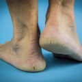 Cracked, Peeling Feet? 5 Conditions You Could Be Suffering From