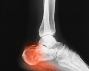 Broken Heel Bone
