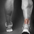 Achilles Tendon Injuries