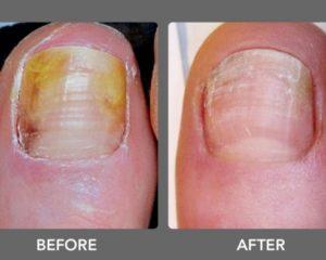 nail fungus treatment, pinpoint laser