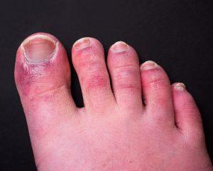 COVID toe, COVID-19