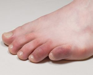 chilblains, red toes, red toe