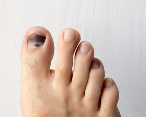 bruised toenail with runner's toe