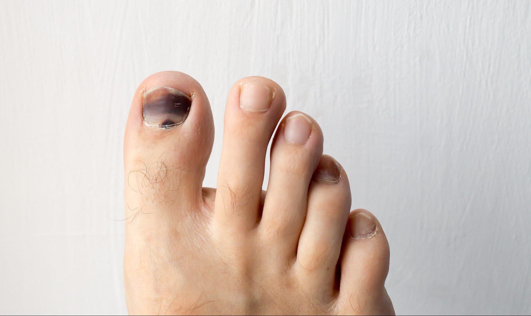black and blue toenail with runner's toe